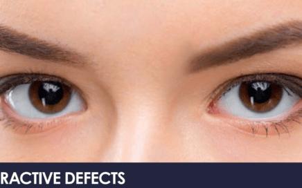 Refractive defects Myopia, hyperopia, and astigmatism 2