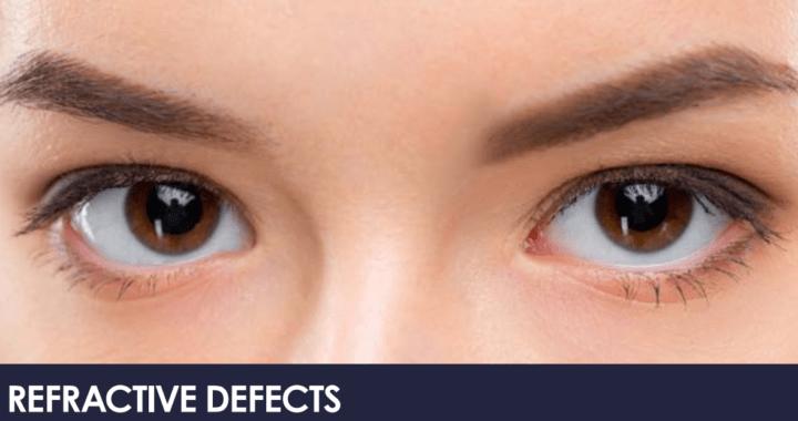 Refractive defects Myopia, hyperopia, and astigmatism 5
