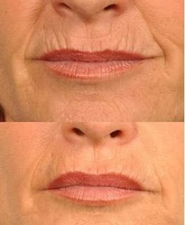 Anti aging, Rejuvenation, rejuvenecimiento